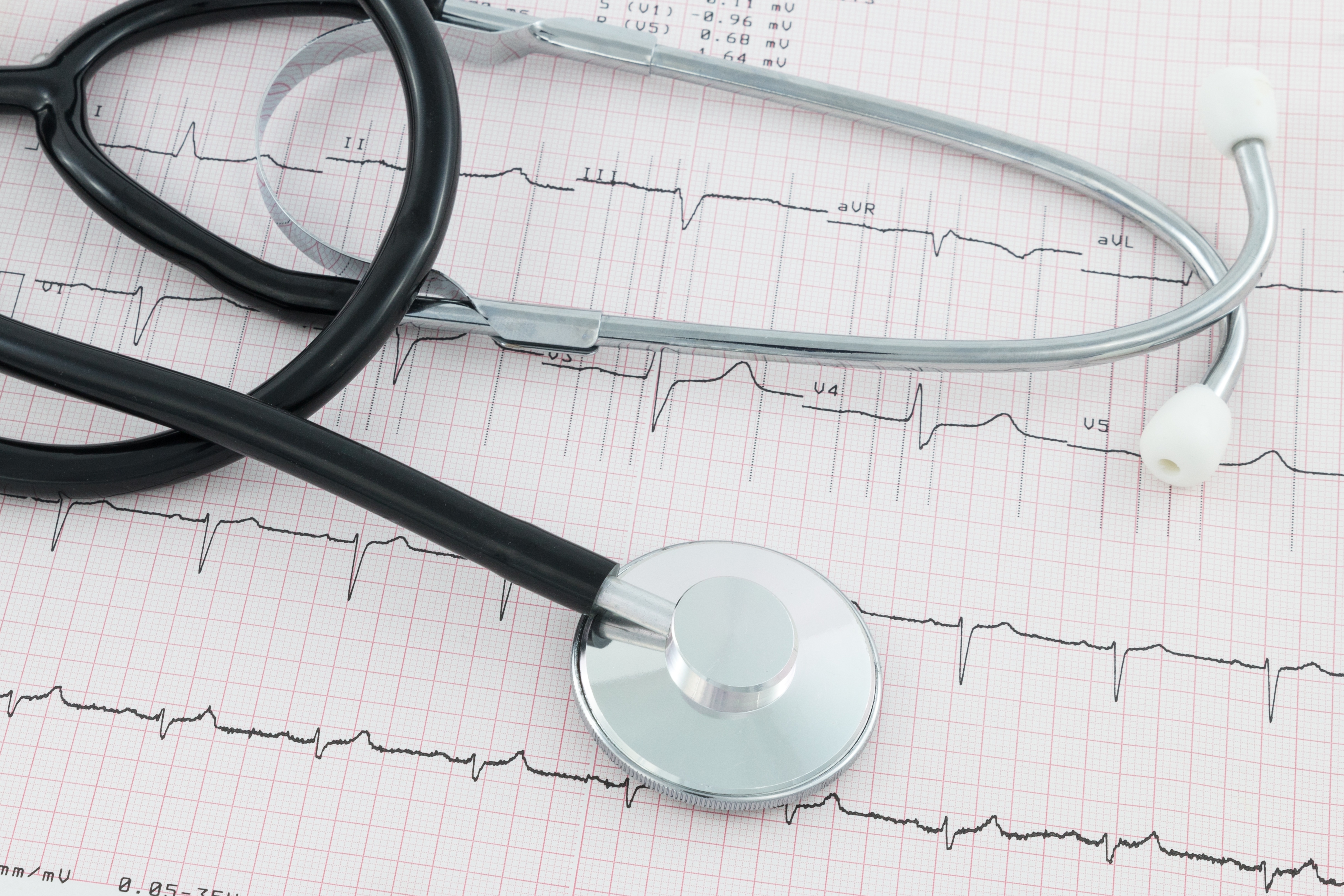 photodune-9120668-stethoscope-on-cardiogram-l